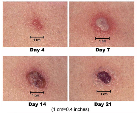 What Does a Scar from Smallpox Vaccination Look Like ... Varicella Vaccine Rash Reaction Picture