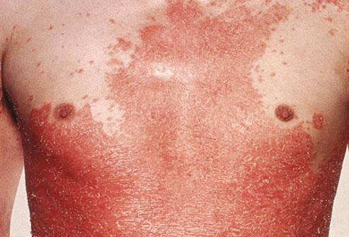 plaque psoriasis is it contagious az ekcémás pikkelysömör kezelése