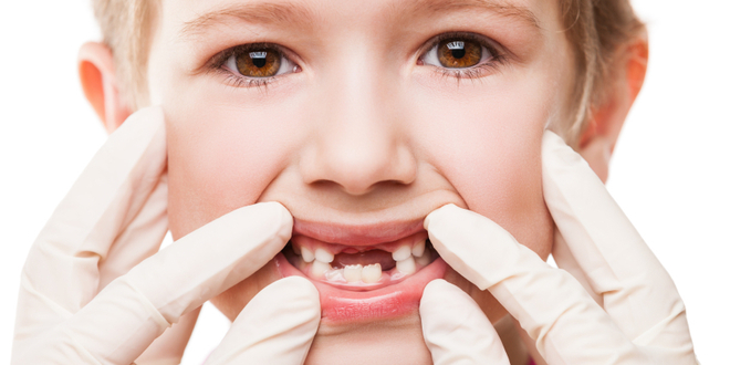 Should a 3 1/2 year old have a cavity filled?