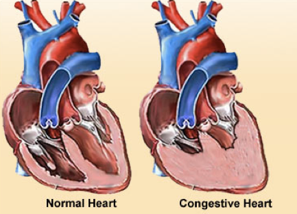 congestive cardiac failure Congestive heart failure (chf) is a common clinical disorder that results in  pulmonary vascular congestion and reduced cardiac output chf should be.