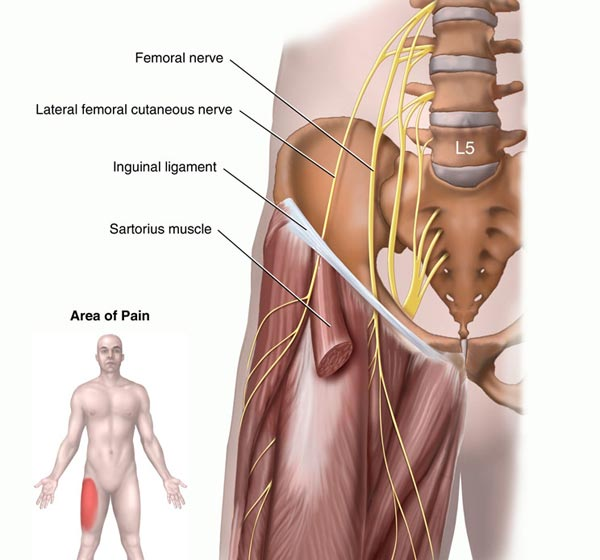 lateral femoral cutaneous nerve and meralgia paresthetica | new, Muscles
