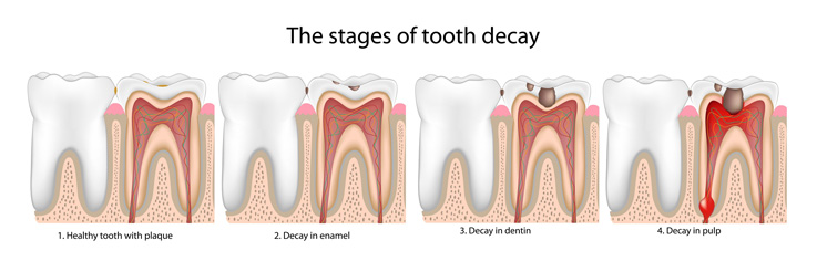 Cavities and Their Natural Treatments  Cure Tooth Decay