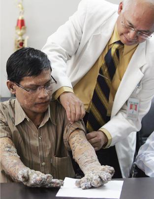 Skin disease that looks like tree bark