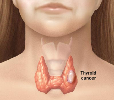 re thyroid cancer video