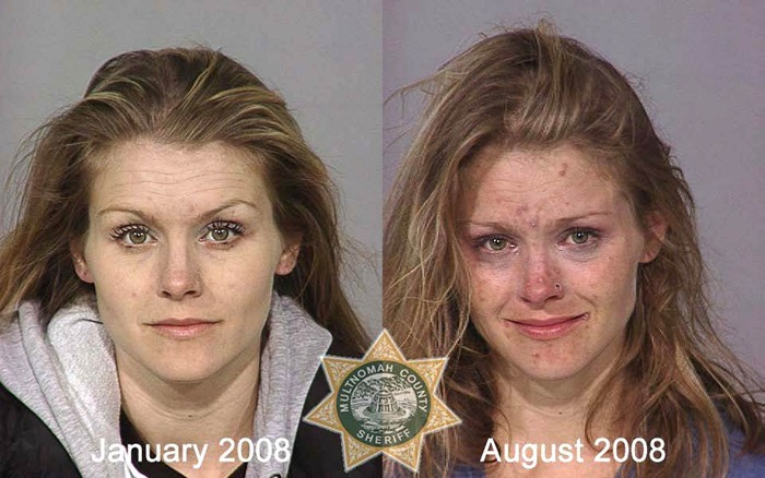 Heroin Addict: Shocking Before and After Photos | New