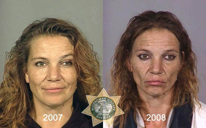 Heroin Addict: Shocking Before and After Photos | New Health Advisor
