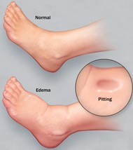 Swollen Feet After Delivery: Causes and Remedies | New ...Preeclampsia Swelling