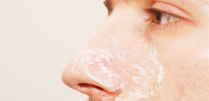 How To Get Rid Of Stubborn Blackheads Naturally