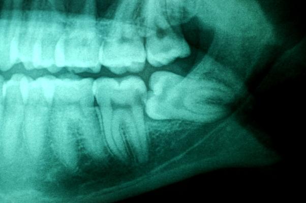 average cost wisdom pulling teeth of