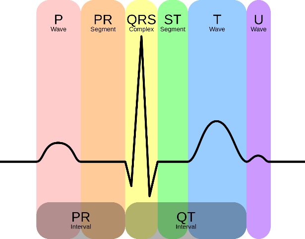 poor r wave progression causes and interpretation new health advisor