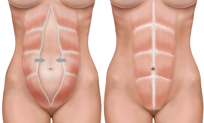 Diastasis Recti Surgery Procedure and Cost | New Health ...