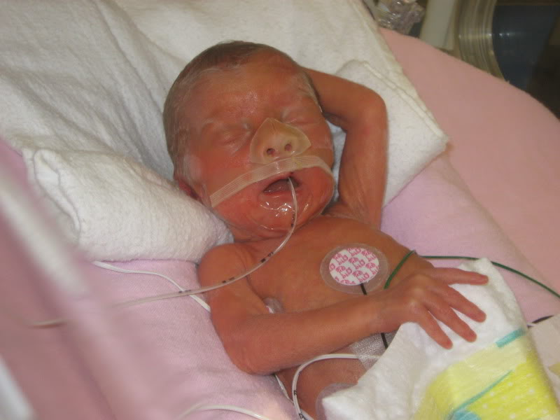 Things You Need to Know About Baby Born at 27 Weeks   New ...
