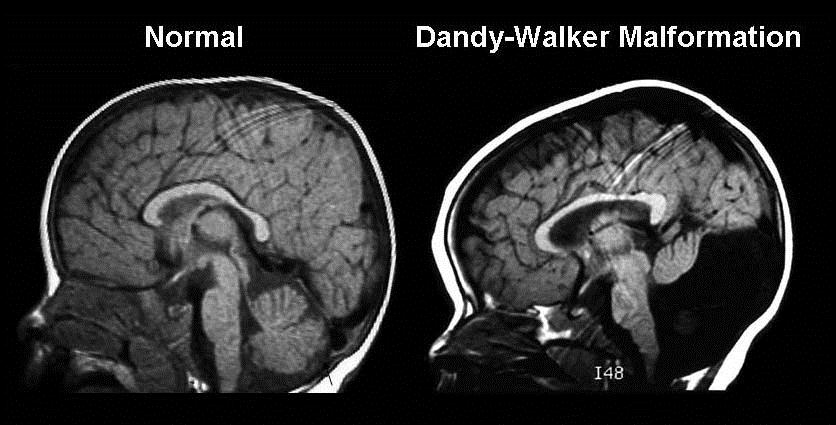 dandy-walker syndrome: symptoms, causes & treatments | new health, Skeleton
