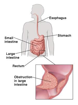 where do the small intestine and large meet