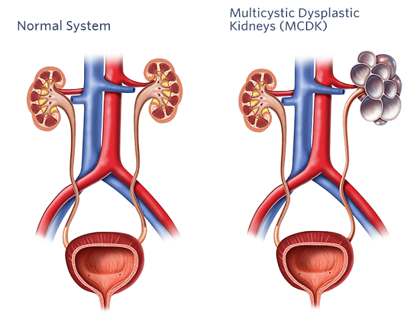 Multicystic Dysplastic Kidney on ureter definition function