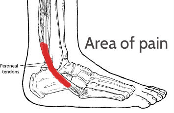 peroneal tendonitis and running