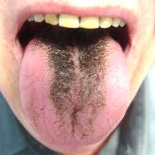 black hairy tongue from oral sex