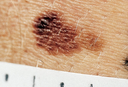 How To Tell If A Mole Is Cancerous New Health Advisor