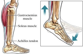 Effect And Risks Of Achilles Tendon Surgery New Health