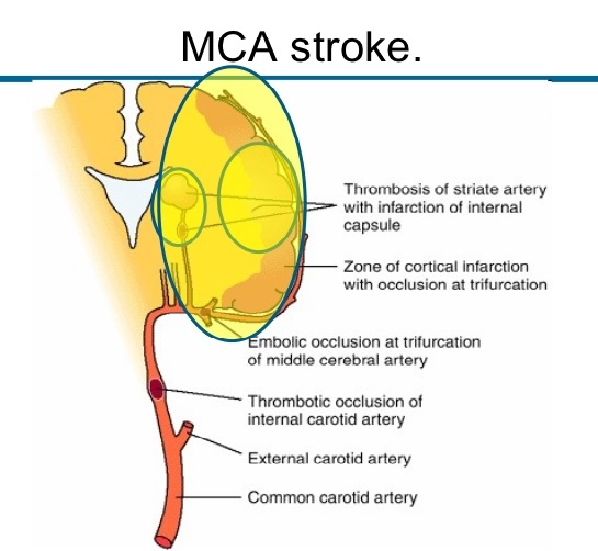 Middle Cerebral Artery Stroke Causes Symptoms
