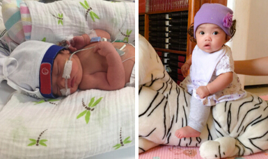 What Is It Like Having a Baby Born at 36 Weeks? | New Health Advisor