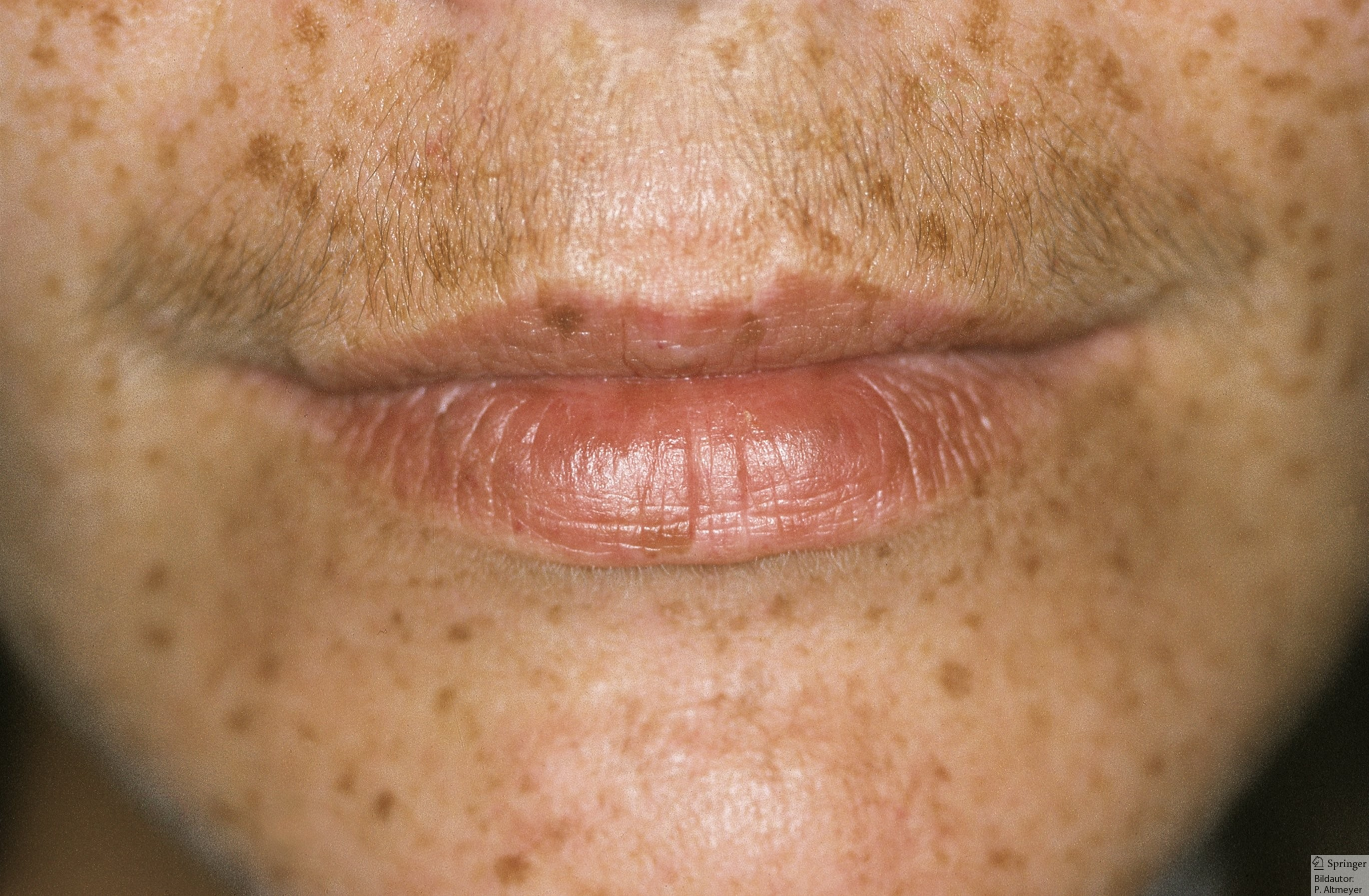 Can Black People Have Freckles New Health Advisor