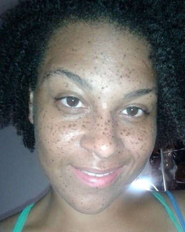 Can Black People Have Freckles? | New Health Advisor
