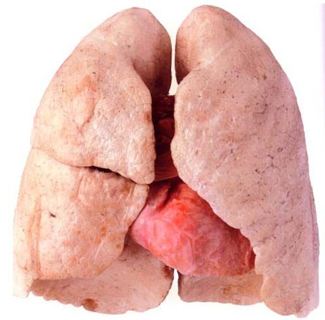 What Do Lungs After Quitting Smoking Look Like? | New ...