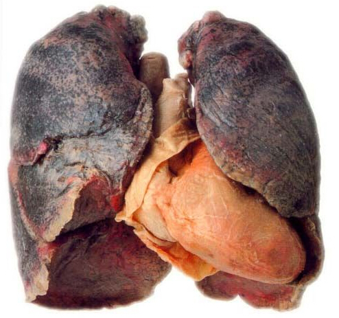 what do lungs after quitting smoking look like new