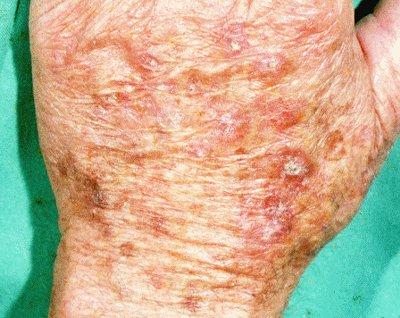 What Does Skin Cancer Look Like New Health Advisor