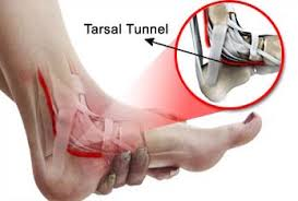 Pinched Nerve in Foot: Causes and Treatments | New Health ...