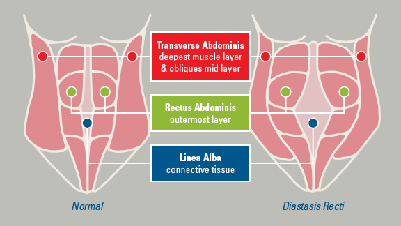 Causes And Treatments Of Diastasis Recti Among Men New Health Advisor