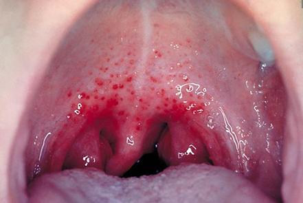 Razor swallowing like blades feels throat sore White spots
