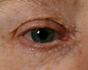What Are the White Spots Under Eyes? | New Health Advisor