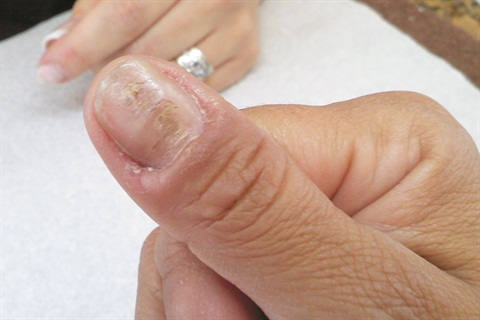 Causes Of Horizontal Ridges In Nails