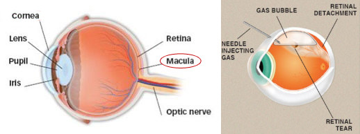 detached retina surgery procedures and post care | new health advisor, Skeleton