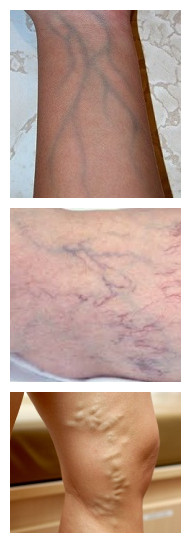 Veins Showing Through Skin Causes And When To Worry