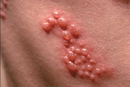 what causes itchy rash all over body? | new health advisor, Skeleton