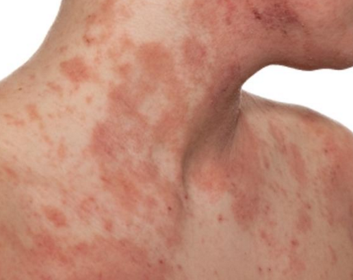 What Causes Itchy Rash All Over Body? | New Health Advisor