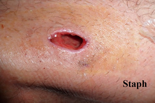 Infected Ingrown Hair Symptoms And Treatments New