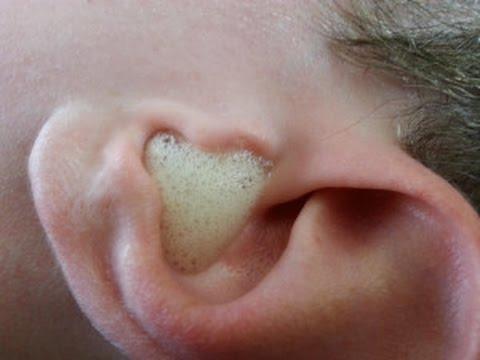 What Causes Dry Skin Around Nose? - SkinCareMoz