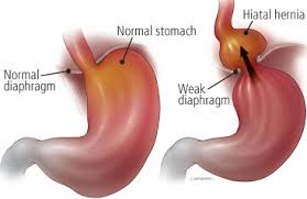 hiatal hernia surgery | new health advisor, Human Body