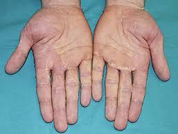 adults surviving kawasakis disease jpg 1200x900