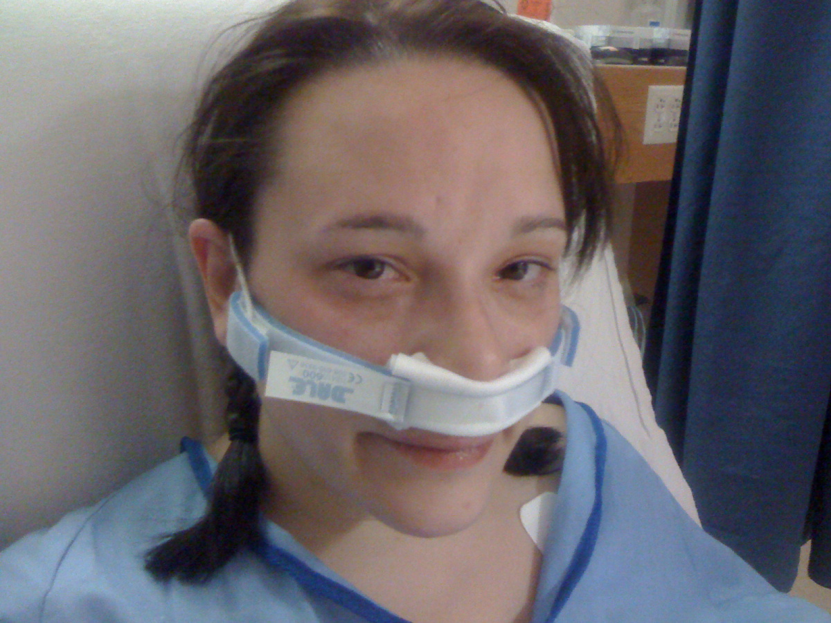 What To Expect In Sinus Surgery Recovery New Health Advisor