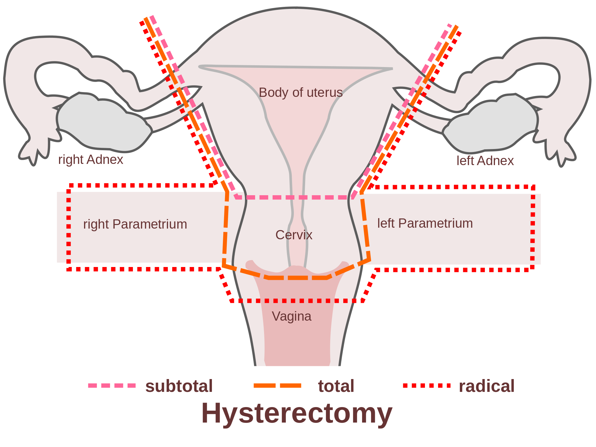 What Are The Hysterectomy Complications New Health Advisor