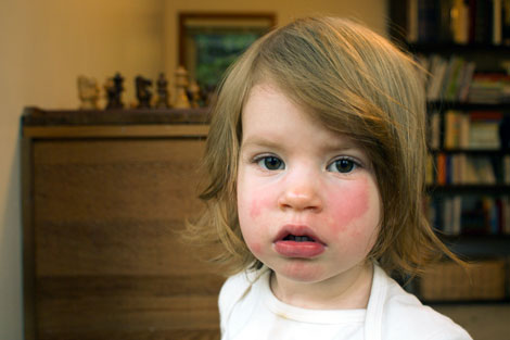 What Is Slapped Cheek Syndrome New Health Advisor