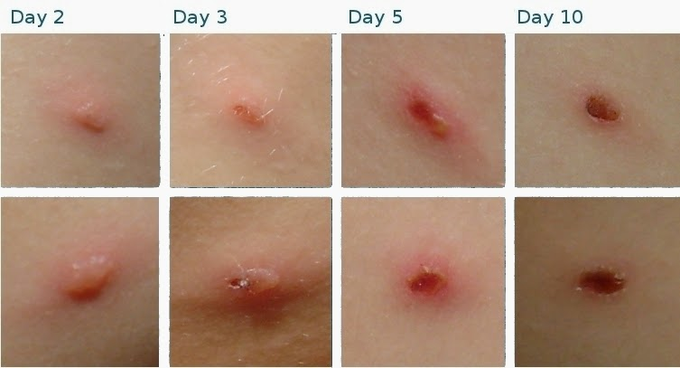 What does Chickenpox Look Like? | New Health Advisor
