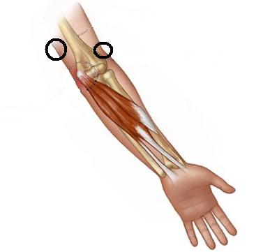 Can T Straighten Arm Why And How To Treat New Health