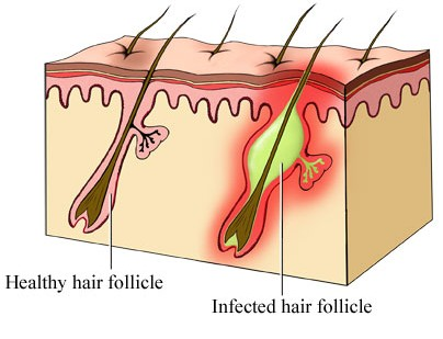 Infected Hair Follicle Causes And Treatments New Health