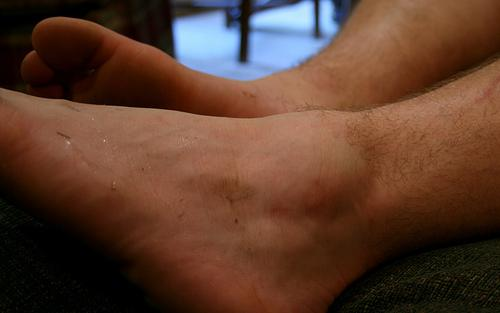 swollen ankle no pain: 7 possible causes and 8 home remedies | new, Skeleton